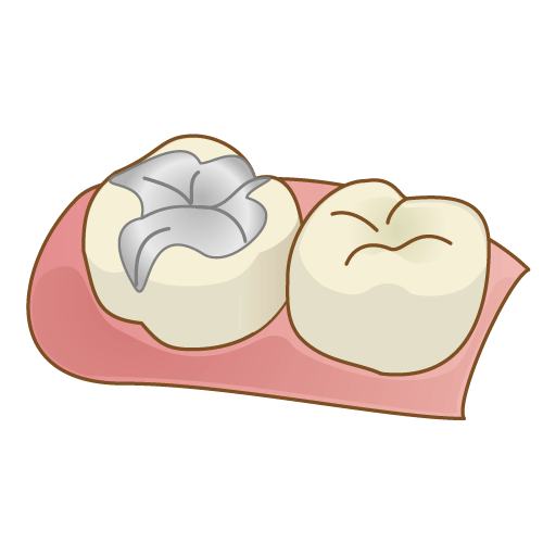 銀歯(保険適応)